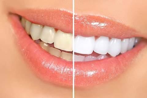 Cirurgiao Dentista Tira Duvidas Sobre Clareamento Dental Folha De